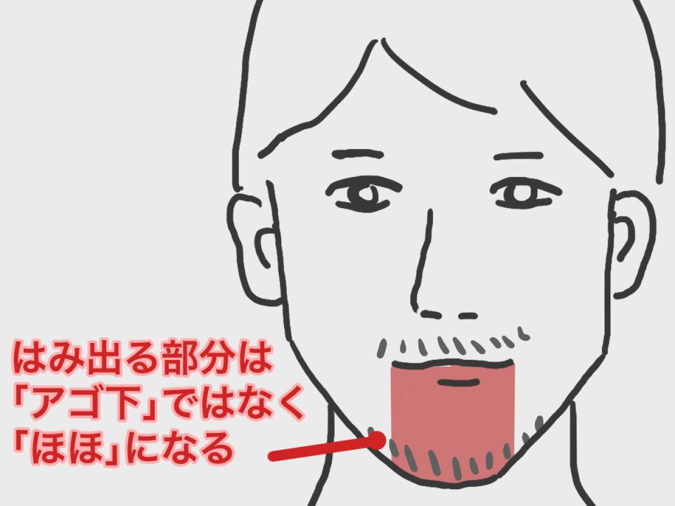 ヒゲ脱毛の範囲